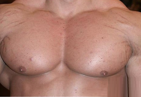 Side Effects of Steroids, Myth or Reality?