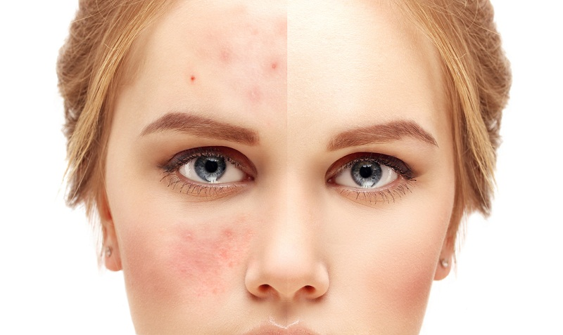 How To Get Rid Of Acne Scars – 7 Acne Scar Treatments