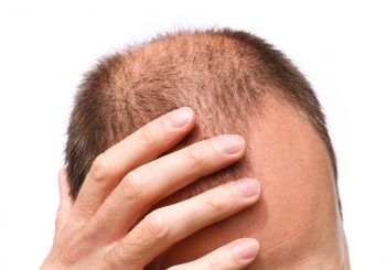 What are the Primary Causes of Hair Loss?