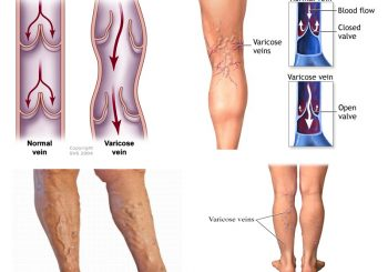 Things you Should Know about Bleeding Varicose Veins