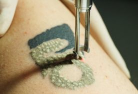 6 Reasons Why Your Tattoo Removal Could Be Unsuccessful