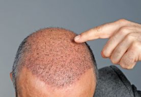Why Turkey is the Best Place for a Hair Transplant