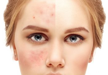 How To Get Rid Of Acne Scars - 7 Acne Scar Treatments