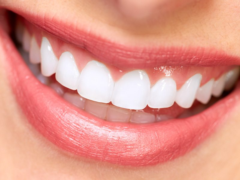 Dental Implants can Make a Significant Change in your Life