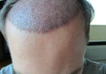 What Hair Treatments Can I Use After a Hair Transplant?